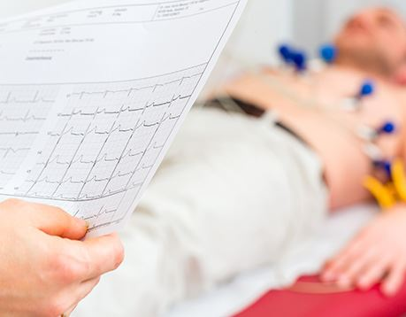 Close-up of printed EKG report with patient blurred in background