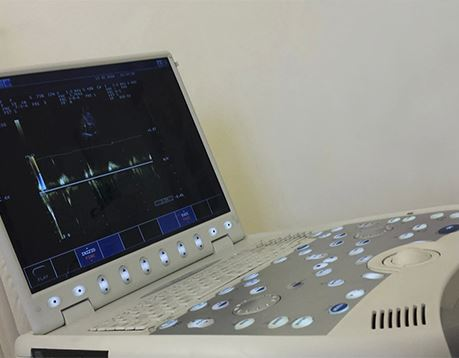 Image of a piece of cardiovascular equipment showing a heart rate on the monitor
