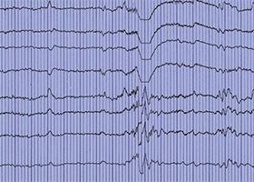 Photo of a printout of an EEG, formally known as an electroencephalography